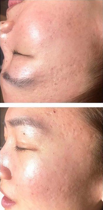Before and After Laser Genesis Facial. Before: Pock marks and acne scars on the face.