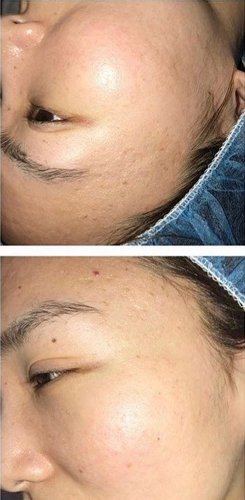 Before and After Laser Genesis Facial. After: Pock marks and acne scars are reduced in appearance.