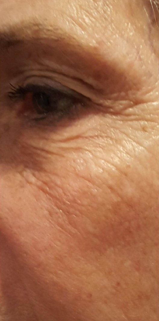 Before and After Forma Skin Tightening. Before: Fine lines around eyes. Crow feet also present around the eyes.