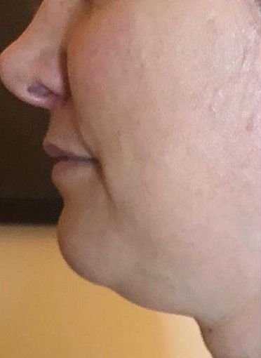 Before and After Forma Skin Tightening. Before: Sagging skin on jowls and presence of a double chin.