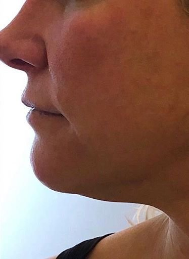 Before and After Forma Skin Tightening. Before: Skin on jowls and double chin is tightened without invasive procedures.