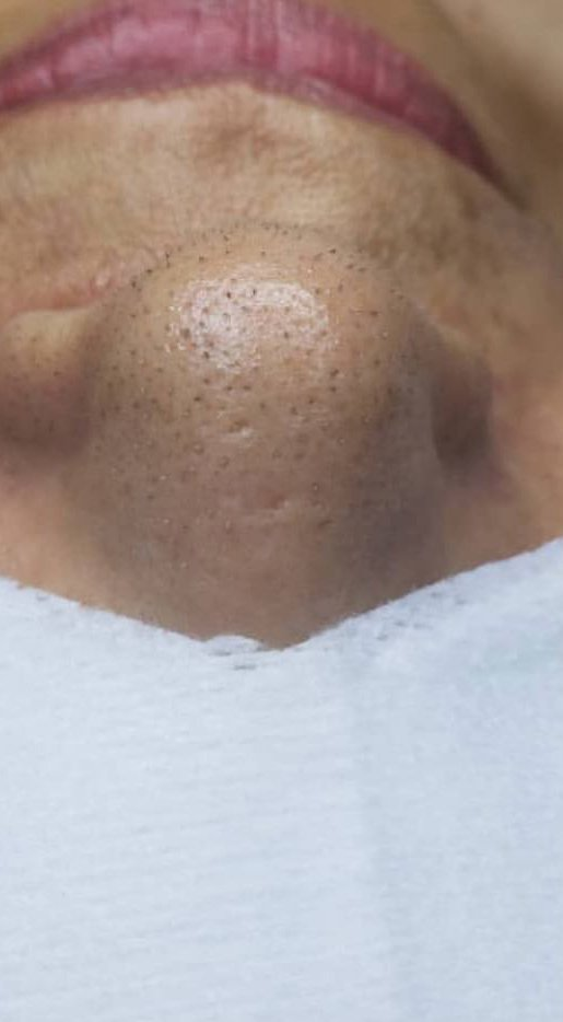 Before and After a Custom Facial. Before: Blackheads abundant on  the nose.