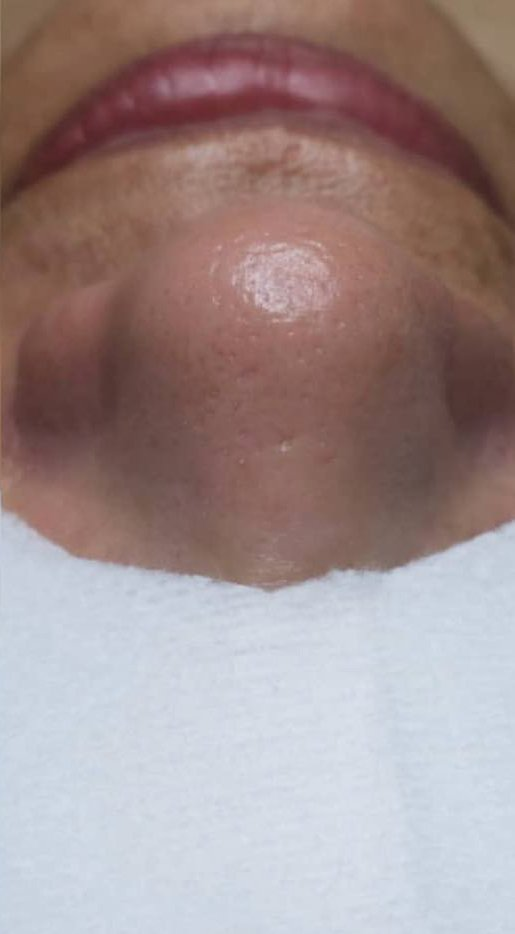 Before and After a Custom Facial. After: Blackheads on the nose are removed and skin is clear.