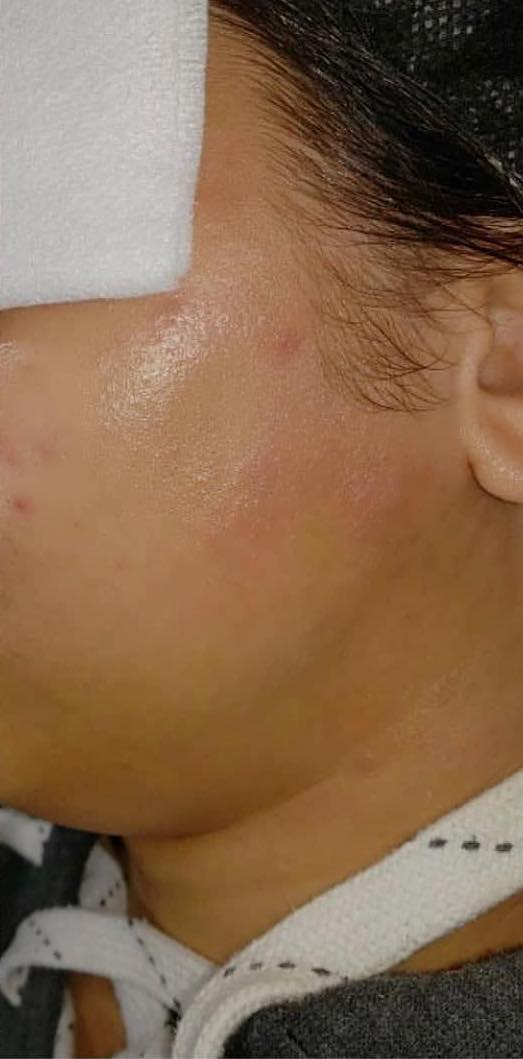 Before and After Dermaplaning. After: Unwanted hair is removed revealing smoother, softer skin.