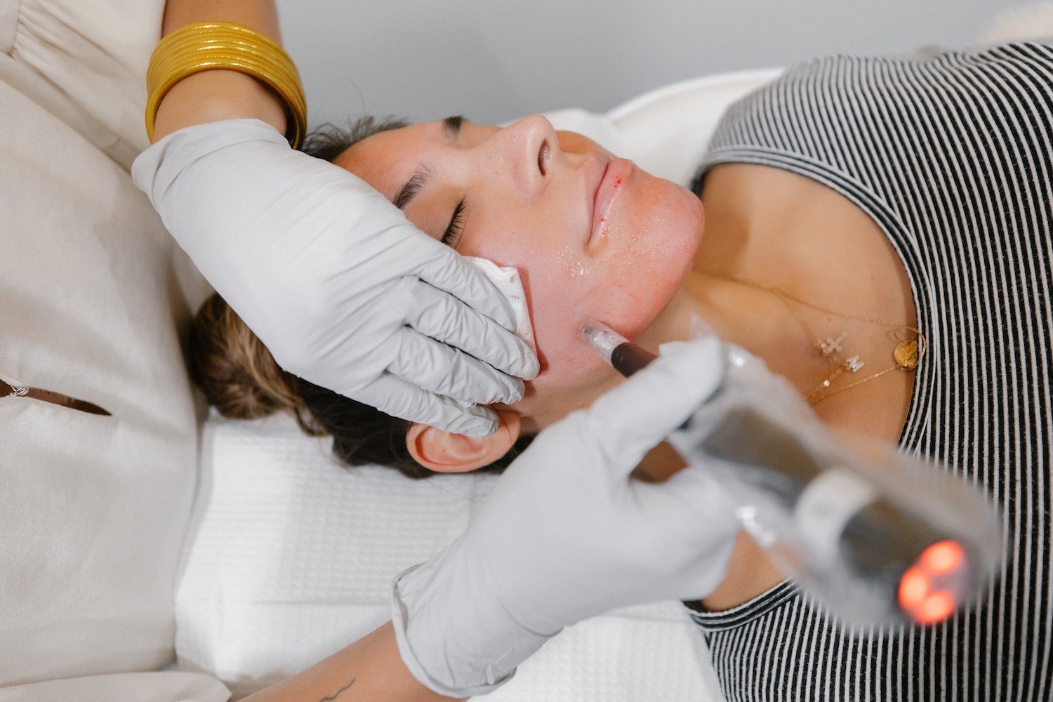 Microneedling Featured Image
