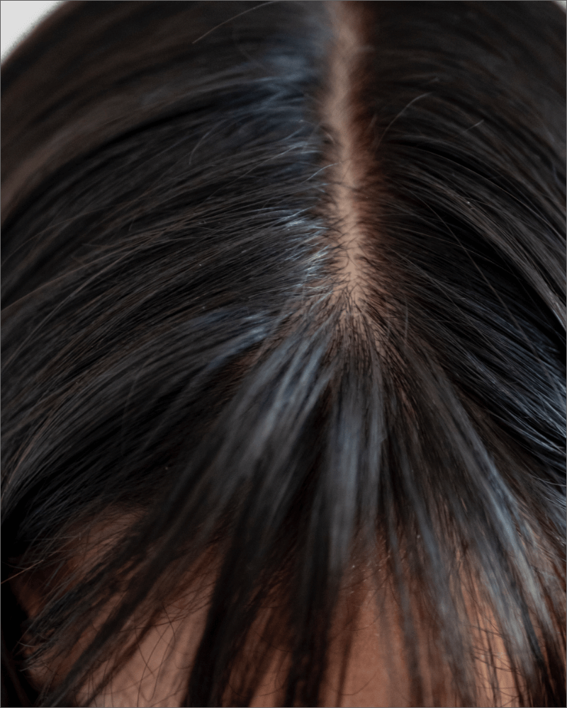 Why is Scalp Health Important?