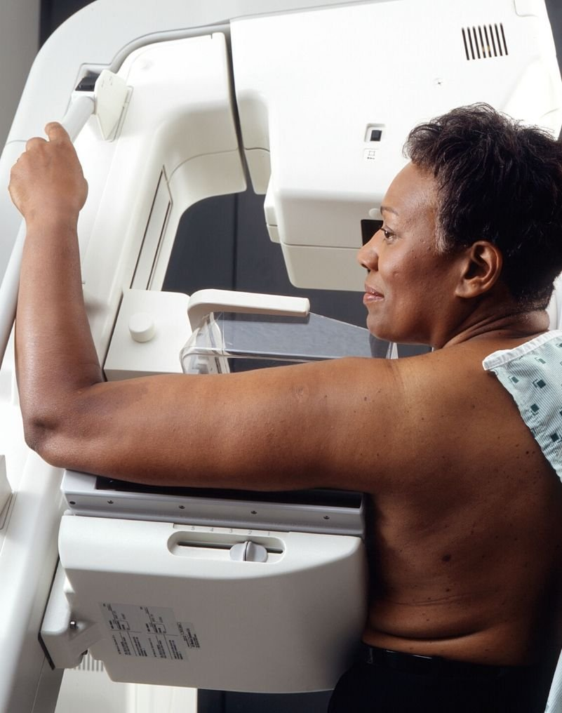 Medical Breast Exam – What you need to know