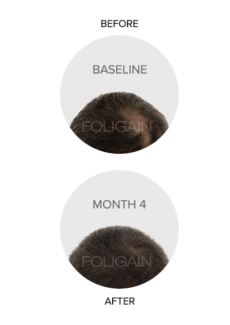 Foligain Australia