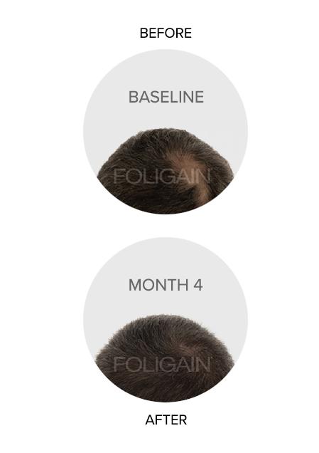 FOLIGAIN® Hair Health